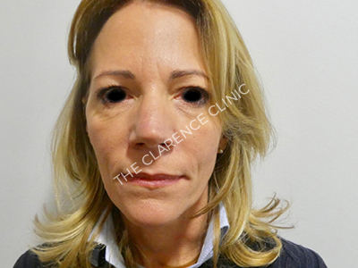 Face Lift (Rhytidectomy)