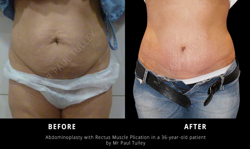 Abdominoplasty Results London