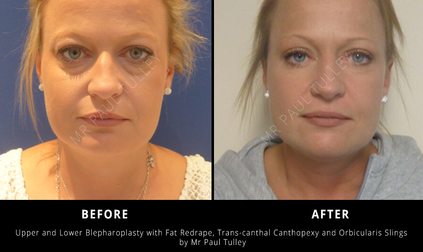 Blepharoplasty Results London