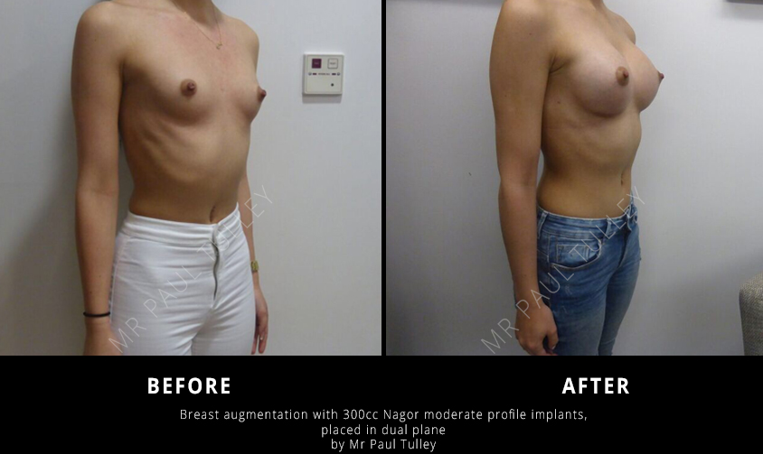 Breast Augmentation Surgery London