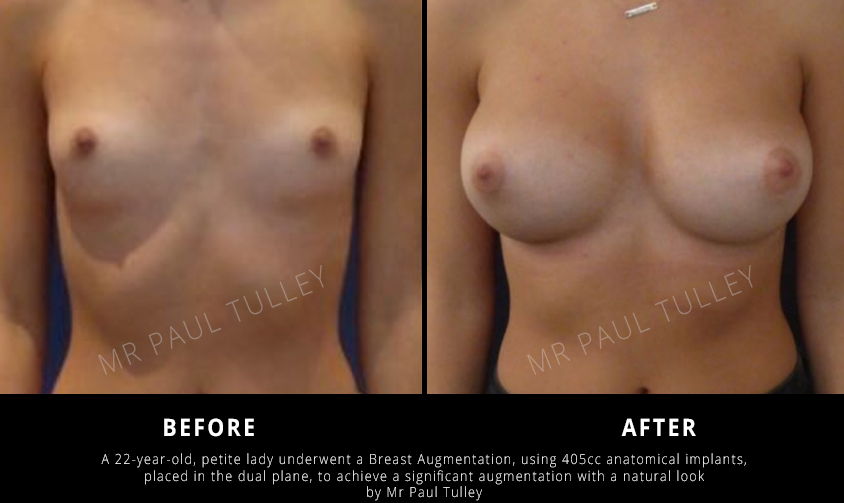 Breast Implant Results London