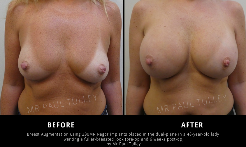 Breast Augmentation Before and Afters London
