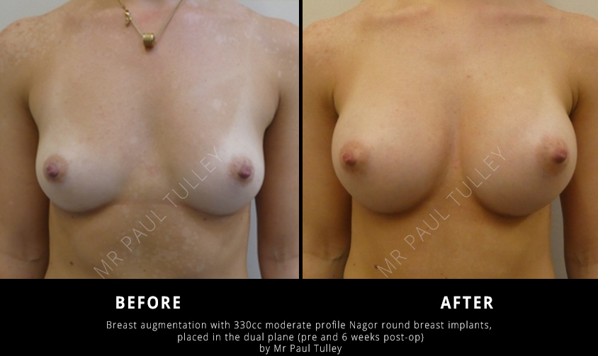 Round Breast Implant Results