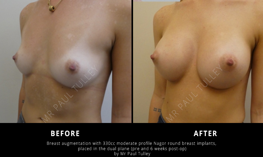 Results with Round Breast Implants
