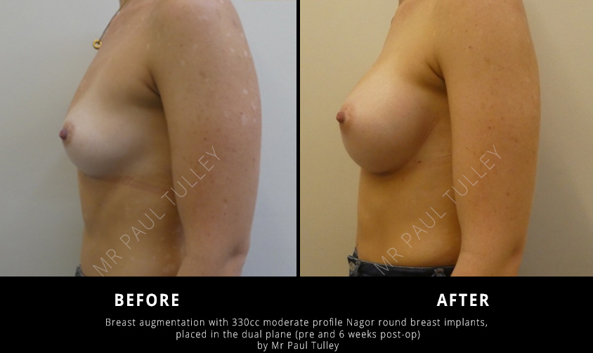 Round Breast Implant Before and Afters