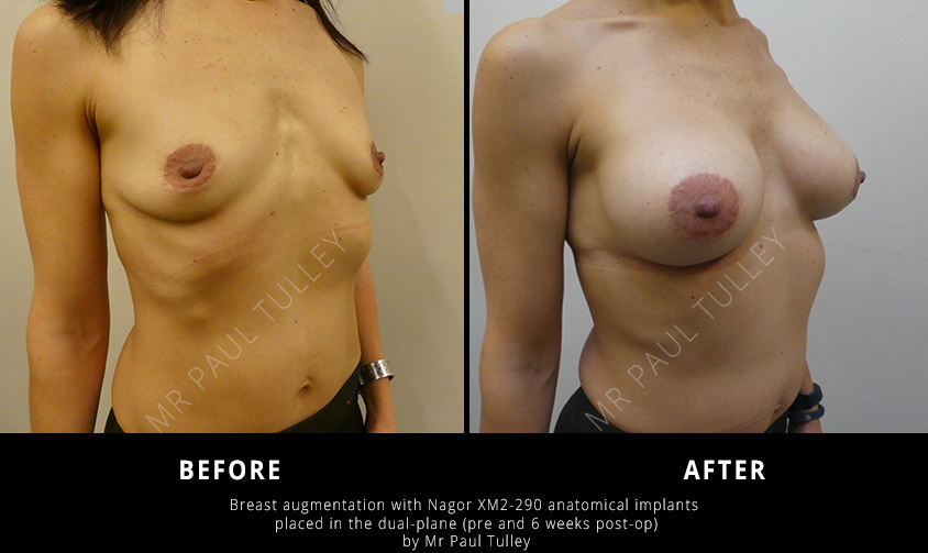 Breast Augmentation with Anatomical Implants