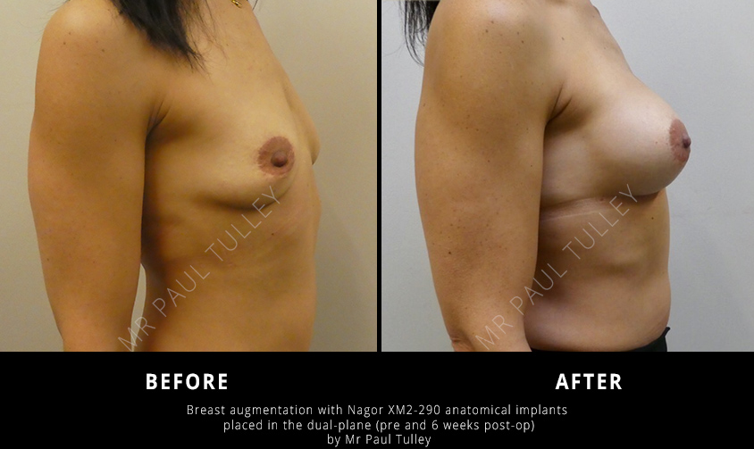 Anatomical Breast Implants Results