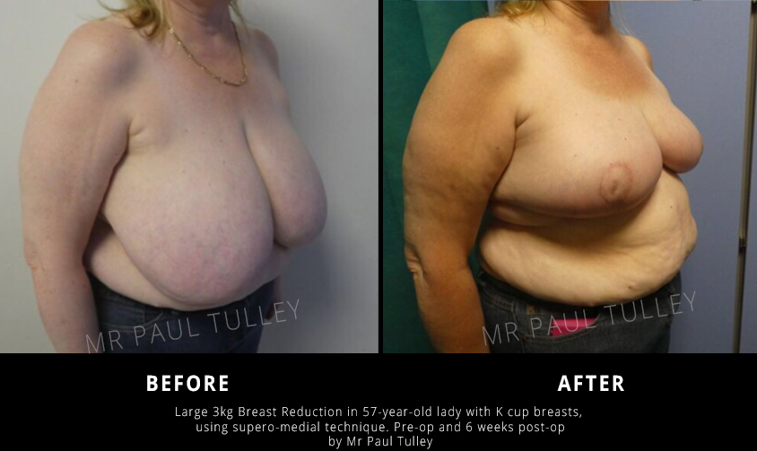Breast Reduction Results London