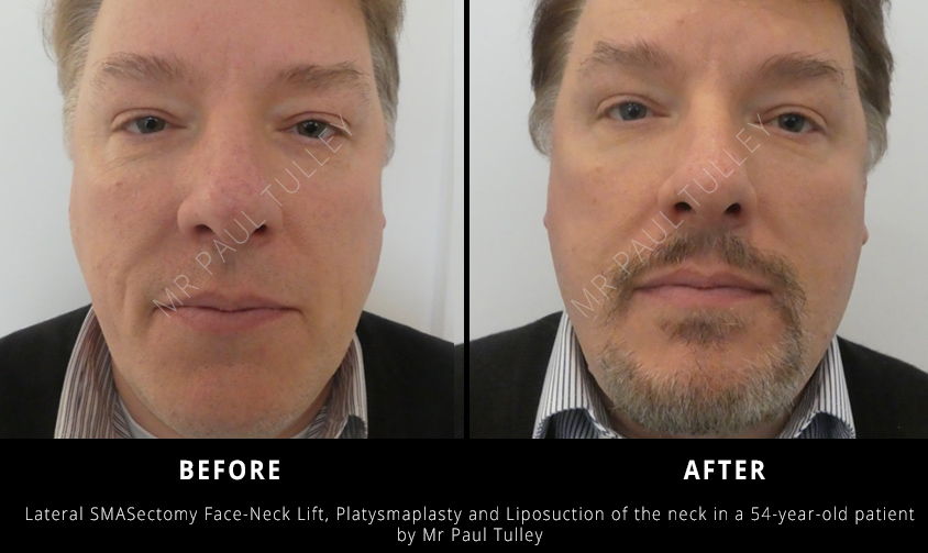 Male Facelift London