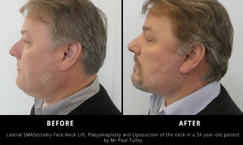 Male Facelift Surgeon London