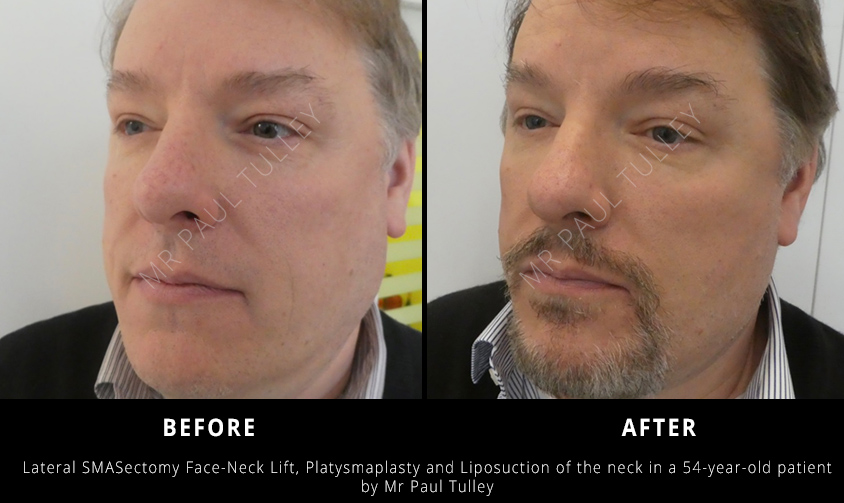 Male Facial Rejuvenation London