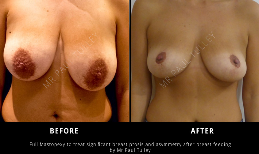 Mastopexy Results London