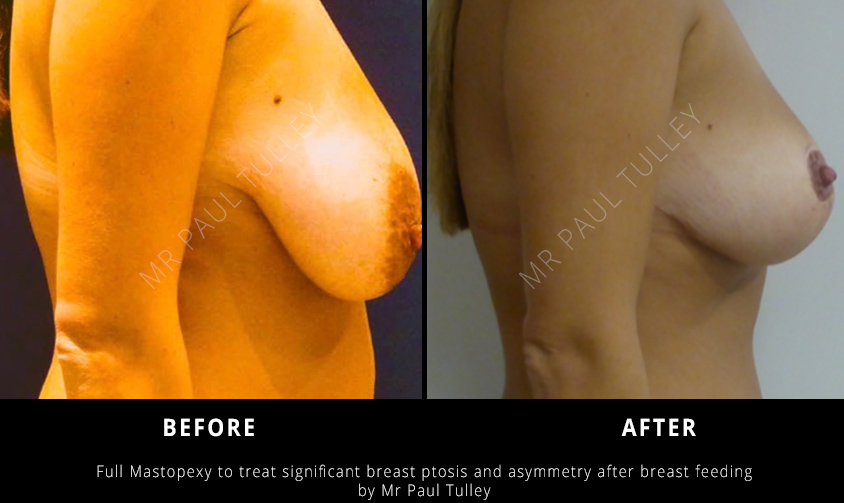 Breast Uplift Results London