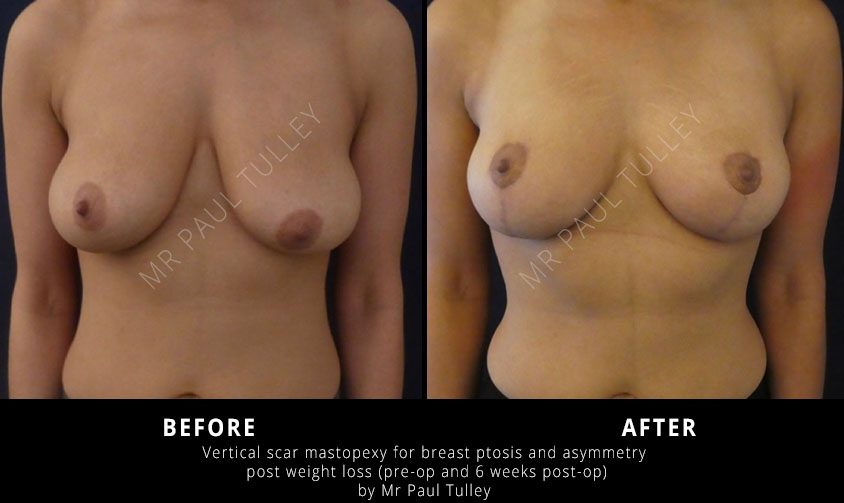 Breast Uplift After Weight Loss