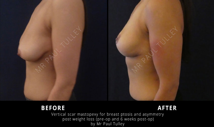 Mastopexy After Weight Loss