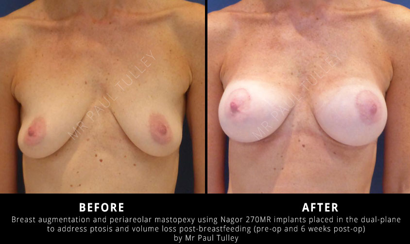 Breast Uplift After Breast Feeding