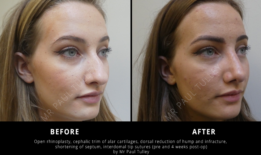 Nose Reshaping Clinic London