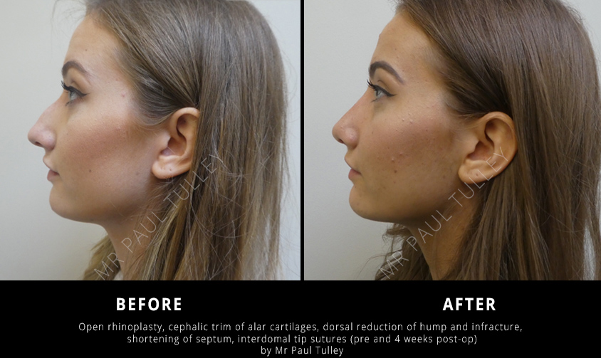 Nose Reshaping Surgery London