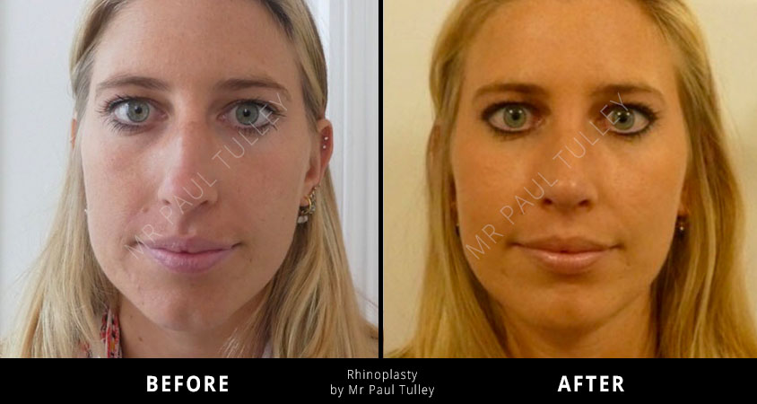 Rhinoplasty Results London