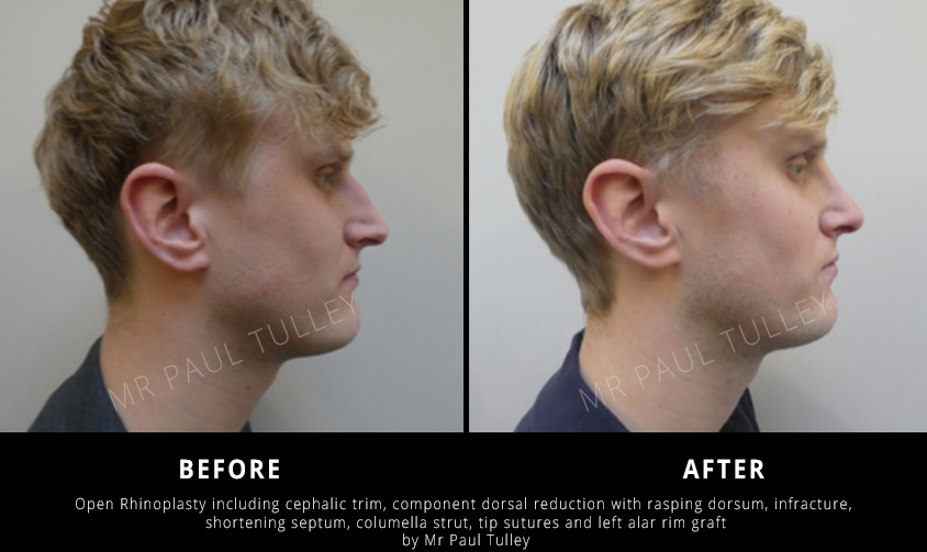 Male Rhinoplasty London