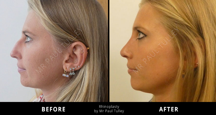 Rhinoplasty Before and Afters London