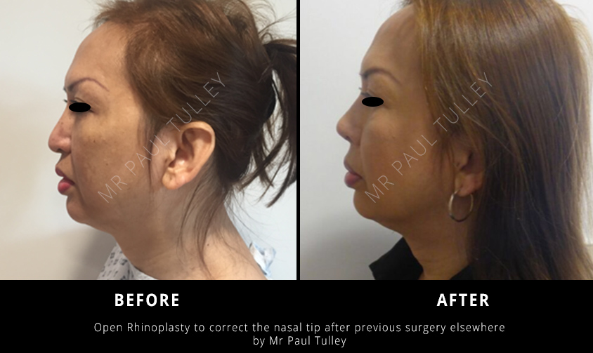 Female Nose Surgery London