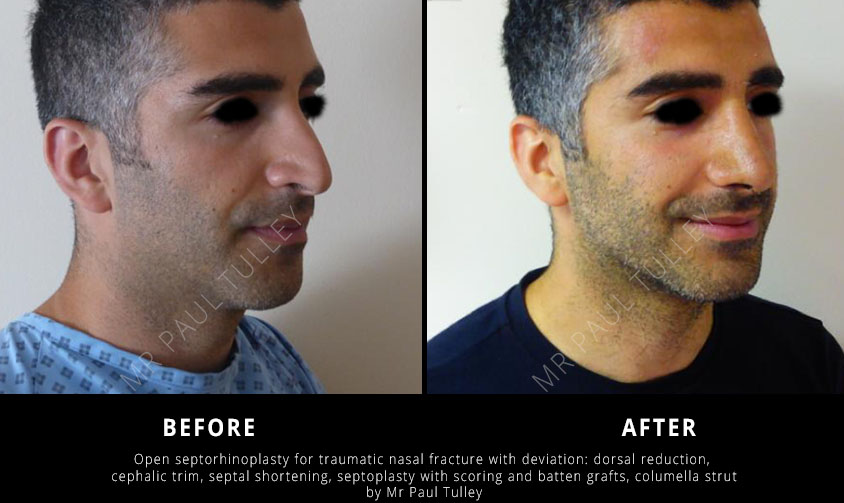 Male Nose Job Results