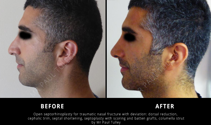 Male Nose Reshaping Surgery London