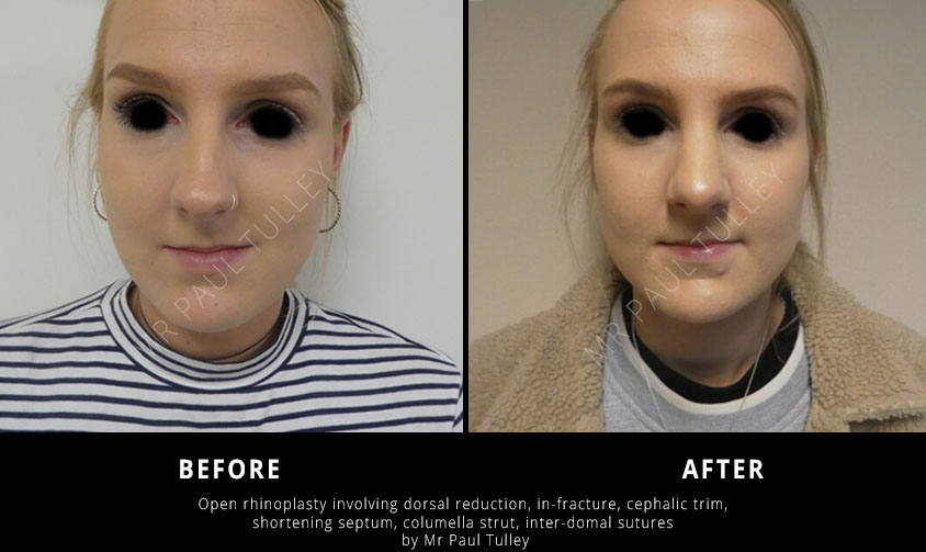 Nose Job Surgeon London