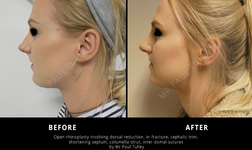 Rhinoplasty Specialist London