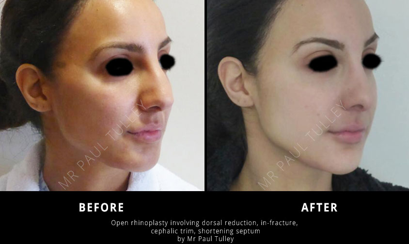 Nasal Reshaping Surgery