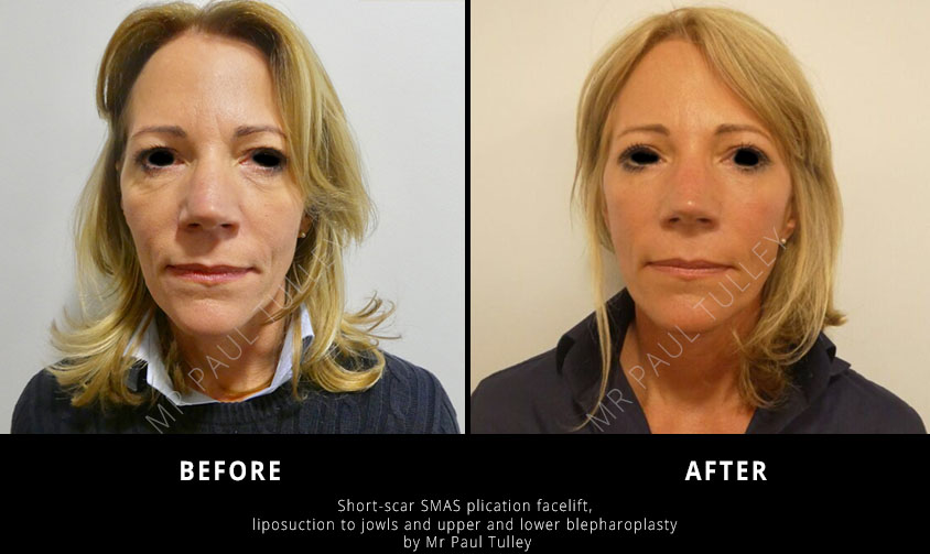Short Scar Facelift Surgeon London