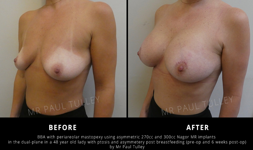 Breast Uplift London