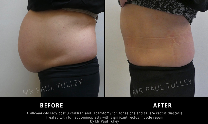 Tummy Tuck After C Section
