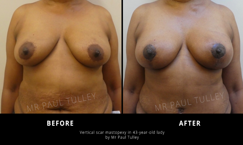 Breast Uplift Results