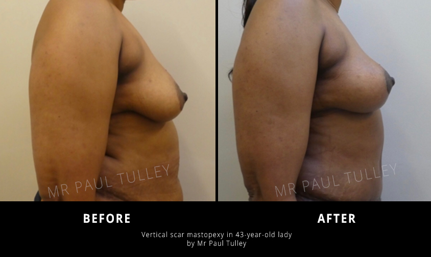 Mastopexy Results