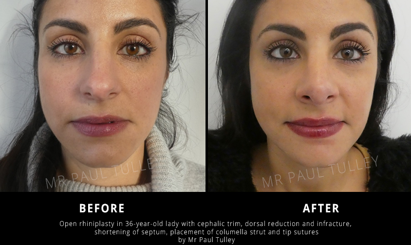 Open Rhinoplasty Results