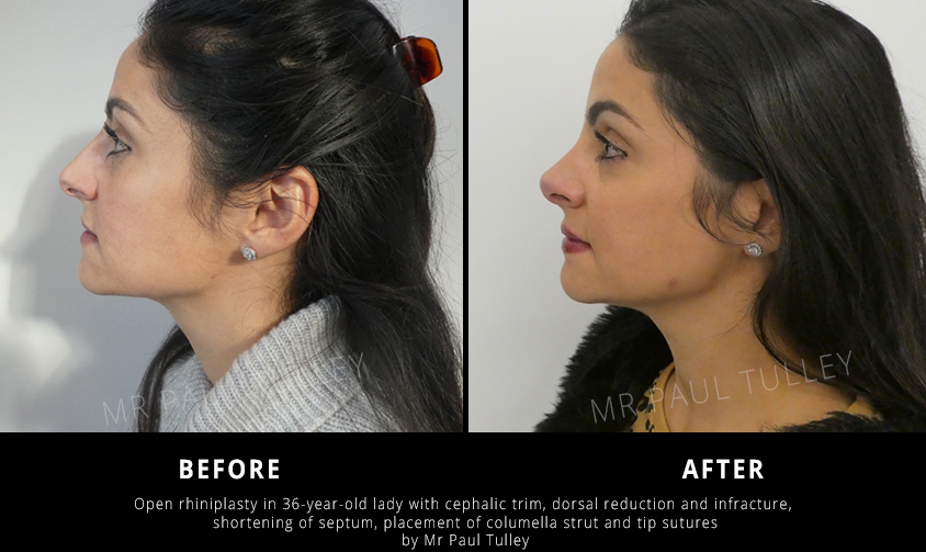Open Nose Job Results
