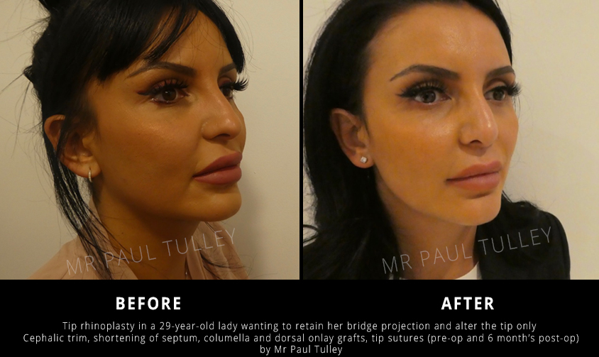 Tip Projection Rhinoplasty