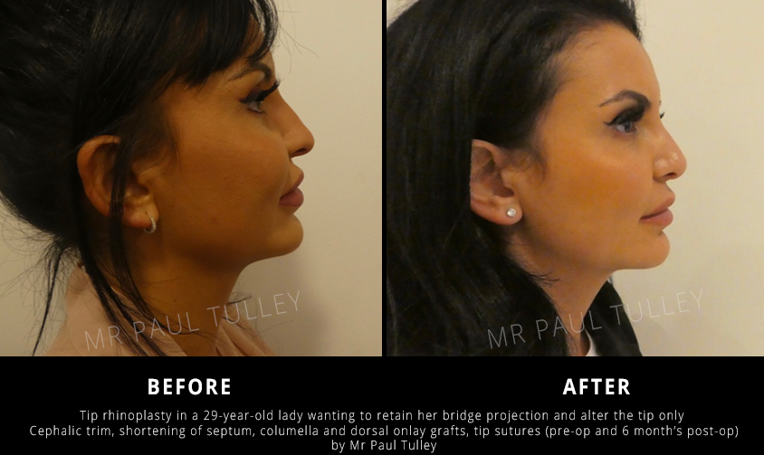 Nose Job For Tip Projection