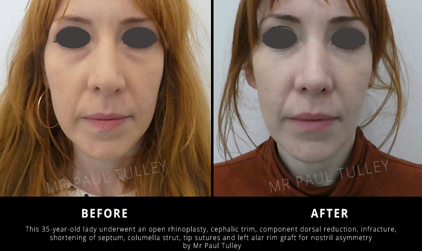 Nose Reshaping Before and Afters