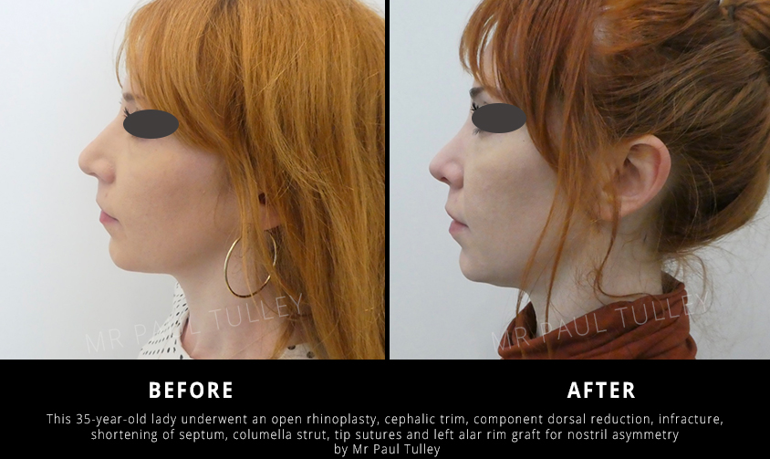 Nose Job Before and Afters
