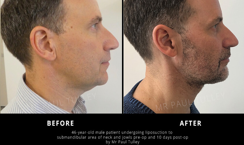 Male Jowls Liposuction Results