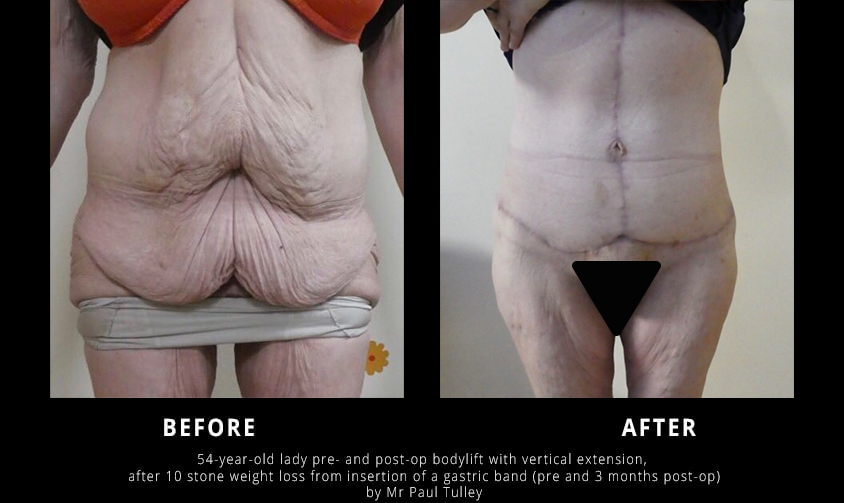 Body Lift Before and Afters